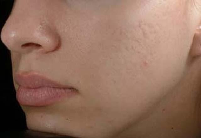 acne bacteria