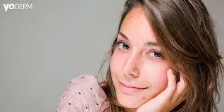 Acne Scars And Chemical Peeling