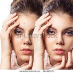 best acne